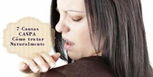7 Causas de la Caspa y como tratarla naturalmente en casa