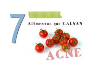 7 Alimentos comunes que causan Acne