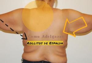 quitar-rollitos-espalda