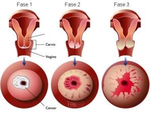 sintomas cancer cuello utero