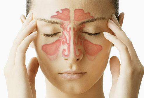 sinusitis cronica