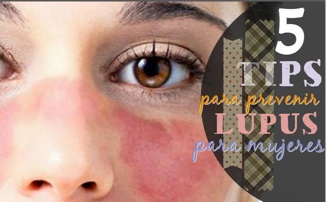5 tips prevenir lupus mujeres
