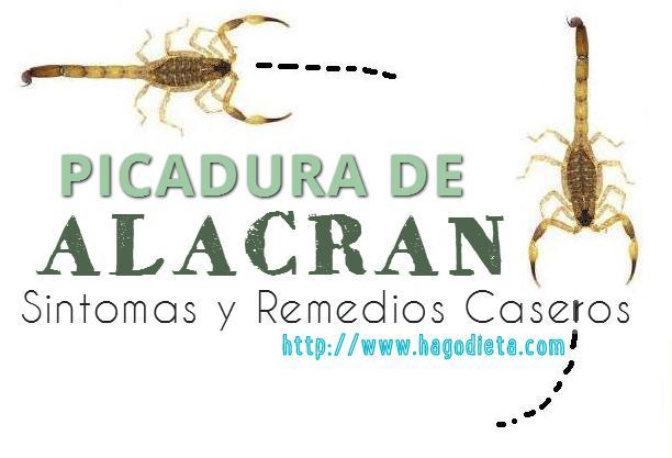 Picadura de Alacran Sintomas y Remedios Caseros