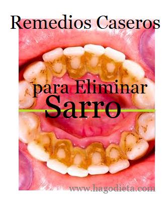 Eliminar Sarro de Dientes Remedios Caseros