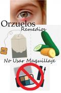 Orzuelos Causas y Tratamiento