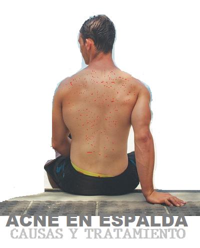 Acne en la Espalda Causas y Tratamiento