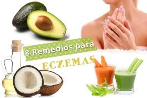 eczemas remedios
