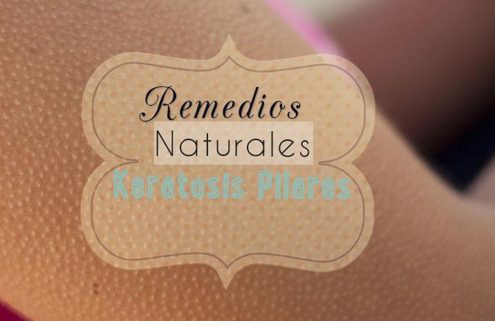 keratosis pilaris remedios