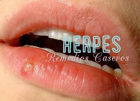 herpes remedios caseros
