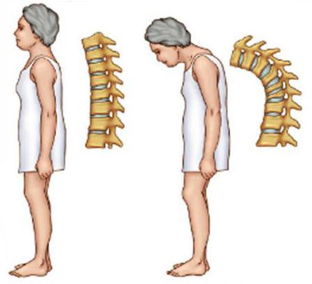 osteoporosis comida