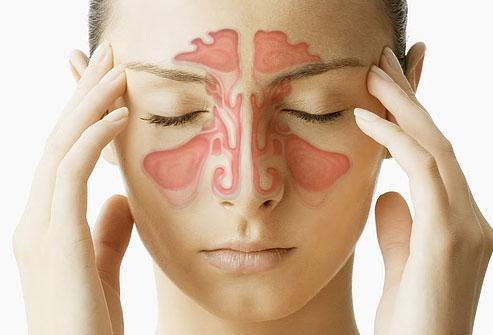 sinusitis cronica