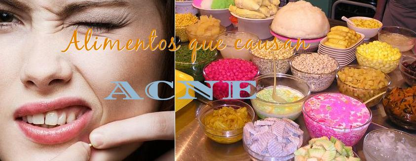 alimentos que causan acne