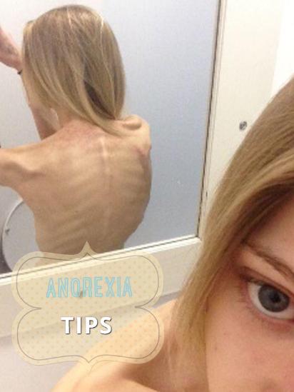 anorexia tips http www hagodieta com