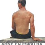 acne-espalda